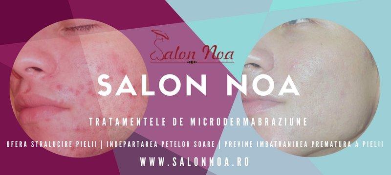 MICRODERMABRAZIUNE - Salon Noa - Timisoara