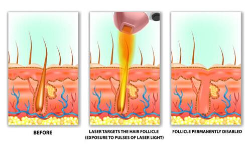 epilare laser timisoara
